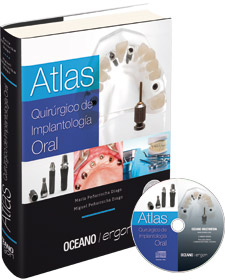 Atlas Quirúrgico de Implantología Oral
